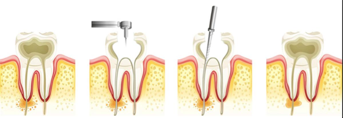 dévitalisation, dent